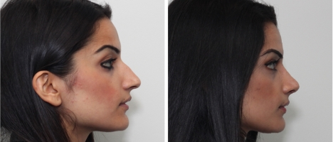 8 West Cosmetic Surgery rhinoplasty patient with hump reduction and tip refinement by Dr. Buonasissi.