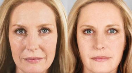 VAMPIRE facelift before and after