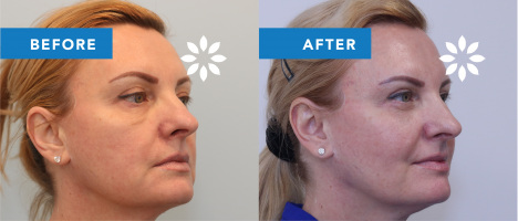 AS39455 Lower Blepharoplasty Before & After Photos - Partial Profile View