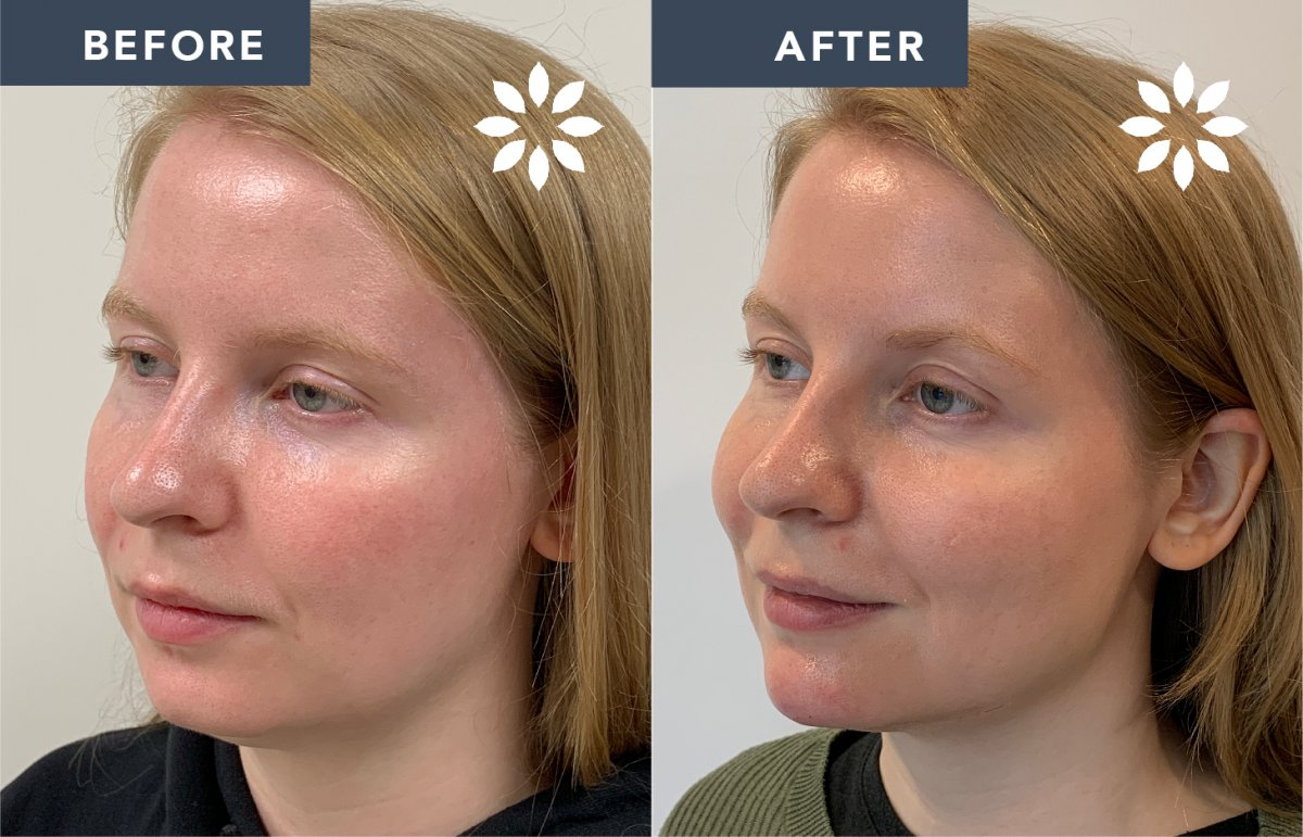 RB1502915 Injectables Chin - Before and After