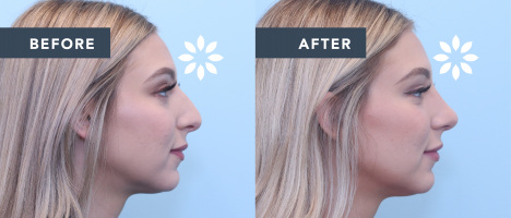 Rhinoplasty Before and After - Side Profile View