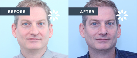 Rhinoplasty Before and After - Front View