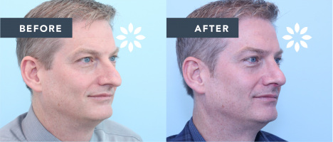 Rhinoplasty Before and After - Partial Profile View
