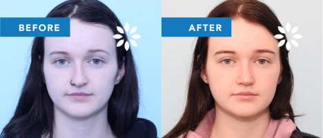 JR47184 Rhinoplasty - Before & After Front View