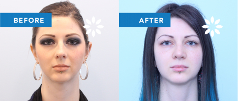RH48252 Rhinoplasty - Before & After Front View