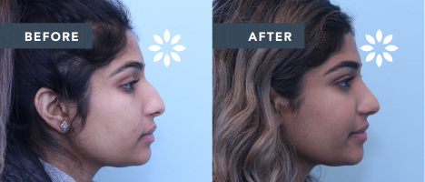 IH50977 Rhinoplasty Before & After Photos - Side Profile View