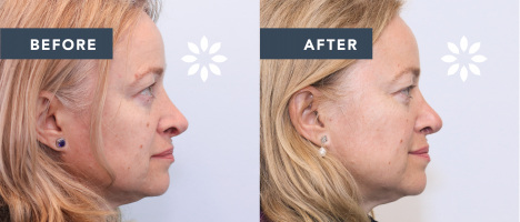 LS51188 Revision Rhinoplasty - Before and After Photos Side Profile View