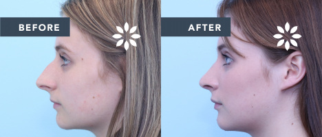 CW51293 Rhinoplasty - Before and After Photos Side Profile View