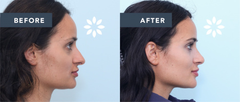 NA51294 Rhinoplasty Before & After Photos - Side Profile View