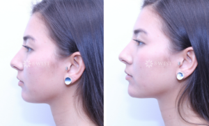 Non Surgical Chin Augmentation with Dermal Filler Before & After Photos Patient 2