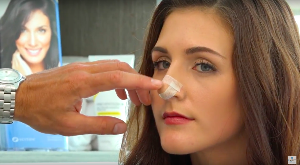 Taping Your Nose After Rhinoplasty