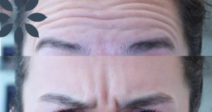 Forehead Line & Frown Line Treatment Before & After Photos Patient 922605