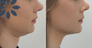 Chin Augmentation with Dermal Filler Before & After Photos Patient 51712