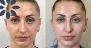 Cheek & Under Eye Rejuvenation with Dermal Filler Before & After Photos Patient 895372